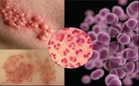 CDC cảnh báo: Ác mộng đến sớm hơn dự kiến, bệnh lậu sắp hết thuốc chữa!